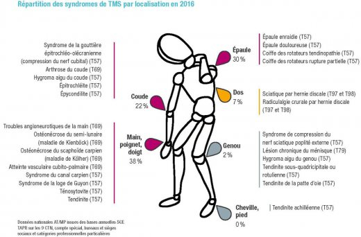 Pratique d'exercices physiques au travail - Quels bénéfices pour la prévention des TMS ?